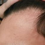 امبولات علاج تساقط الشعر للرجال فيشي ديركوس أمينيكسيل كلينيكال 5 ( 21 امبولة)