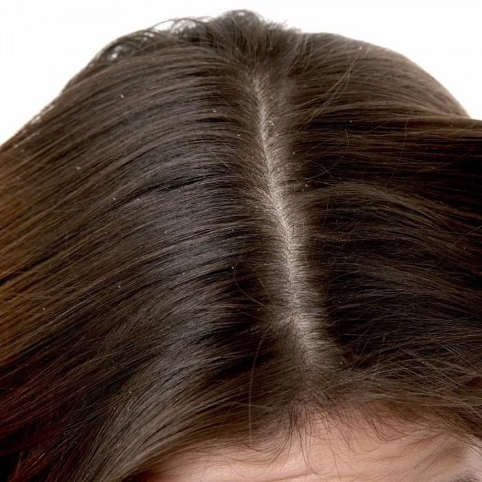 محلول فيلا بورغيني الخاص في علاج قشرة الشعر 60مل