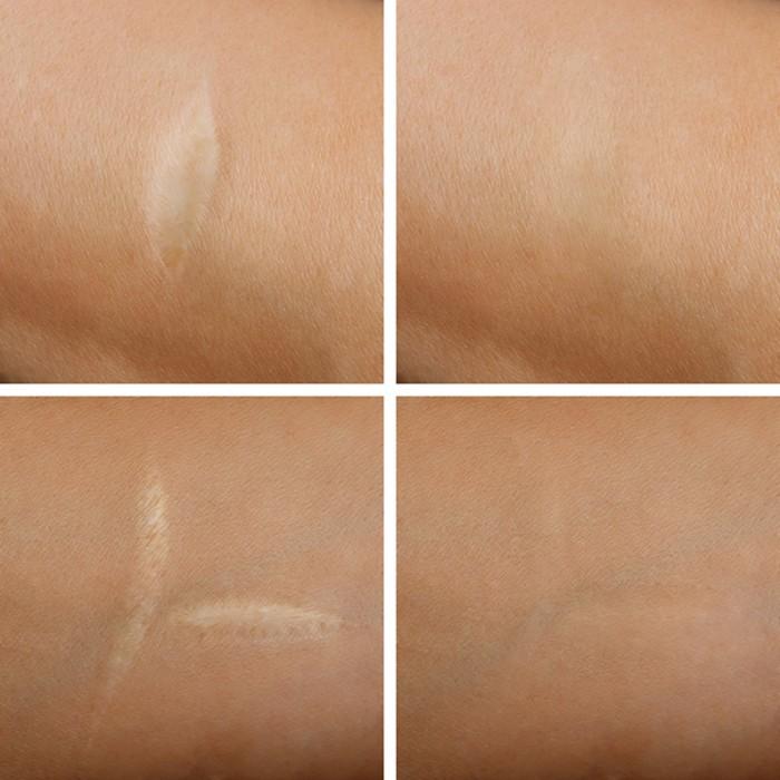 كريم فيشي المضاد لعلامات تمدد الجلد  200مل
