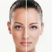 skin whitening (100)